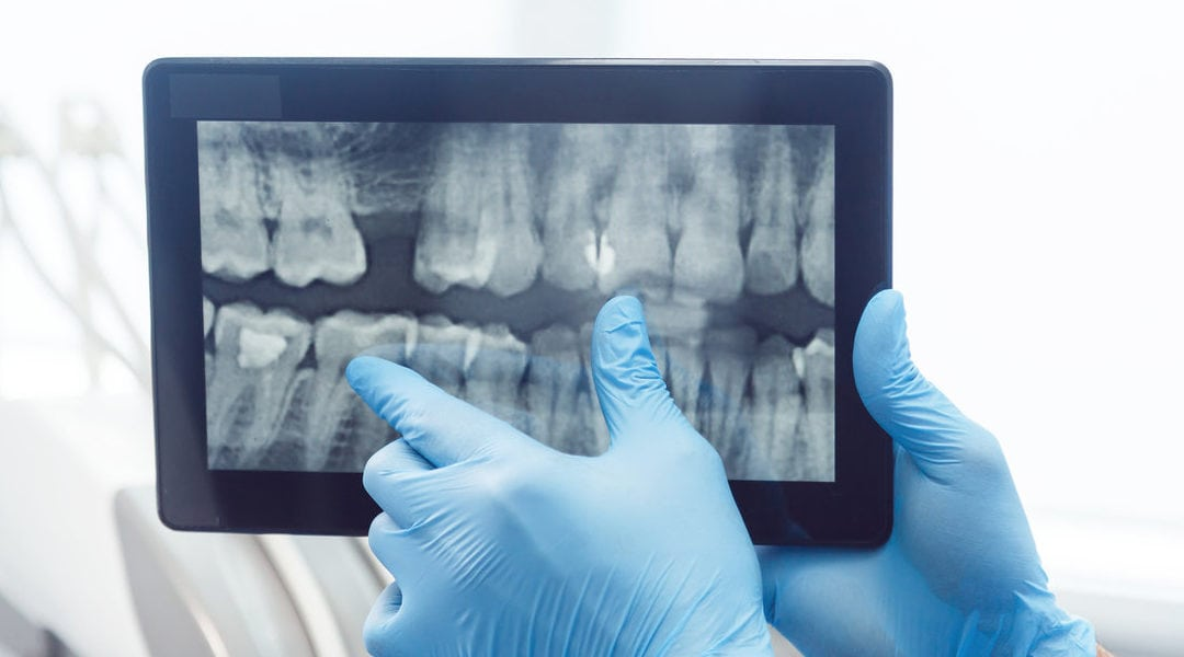 Potential Root Canal Problems You Need To Be Aware
